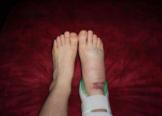 sore foot